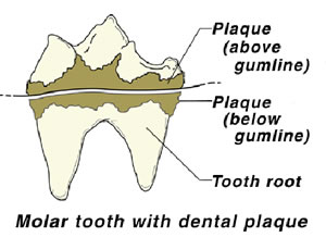 Dental Disease